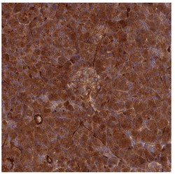 Immunohistochemistry (Formalin/PFA-fixed paraffin-embedded sections) - Anti-SPATS2 antibody (ab122495)