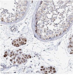 Immunohistochemistry (Formalin/PFA-fixed paraffin-embedded sections) - Anti-CCDC73 antibody (ab122499)