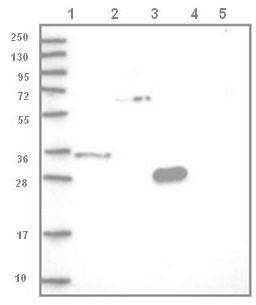 Western blot - Anti-LY6G5C antibody (ab122501)