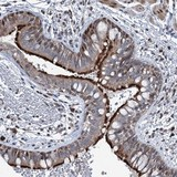 Immunohistochemistry (Formalin/PFA-fixed paraffin-embedded sections) - Anti-MRPL14 antibody (ab122508)