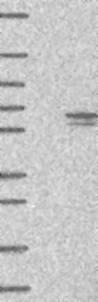 Western blot - Anti-CCDC77 antibody (ab122513)