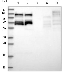 Western blot - Anti-RBM19 antibody (ab122515)