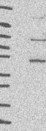 Western blot - Anti-PATL1 antibody (ab122526)