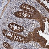 Immunohistochemistry (Formalin/PFA-fixed paraffin-embedded sections) - Anti-RITA antibody (ab122531)