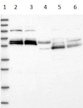Western blot - Anti-GPCR GPR63 antibody (ab122532)