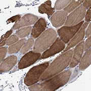 Immunohistochemistry (Formalin/PFA-fixed paraffin-embedded sections) - Anti-MYOZ3 antibody (ab122540)