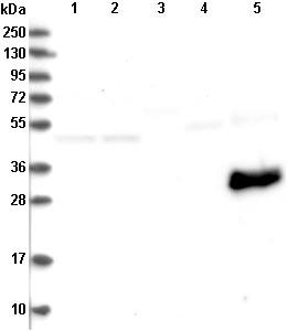 Western blot - Anti-MYOZ3 antibody (ab122540)