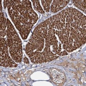 Immunohistochemistry (Formalin/PFA-fixed paraffin-embedded sections) - Anti-ISM2 antibody (ab122582)