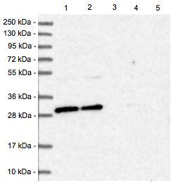 Western blot - Anti-BCDIN3D antibody (ab122599)