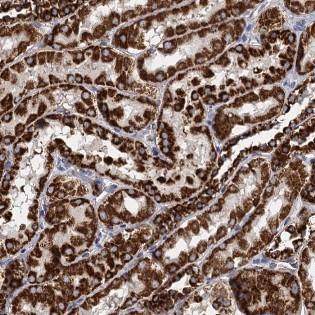 Immunohistochemistry (Formalin/PFA-fixed paraffin-embedded sections) - Anti-TIMM10 antibody (ab122606)