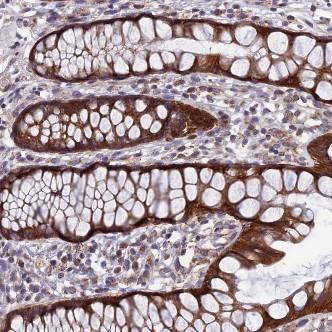 Immunohistochemistry (Formalin/PFA-fixed paraffin-embedded sections) - Anti-AP4S1 antibody (ab122607)