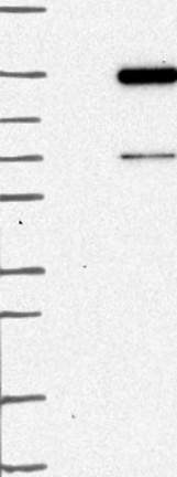 Western blot - Anti-FAM186B antibody (ab122610)