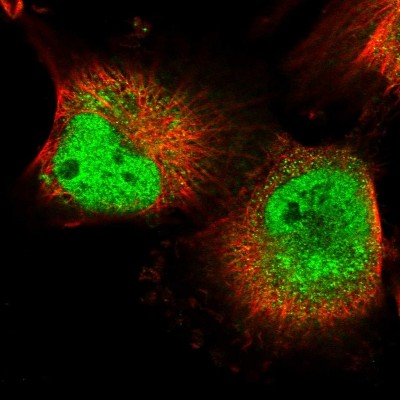 Immunocytochemistry/ Immunofluorescence - Anti-MPP8 antibody (ab122611)