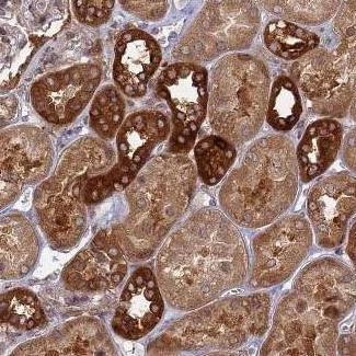 Immunohistochemistry (Formalin/PFA-fixed paraffin-embedded sections) - Anti-TBC1D30 antibody (ab122613)
