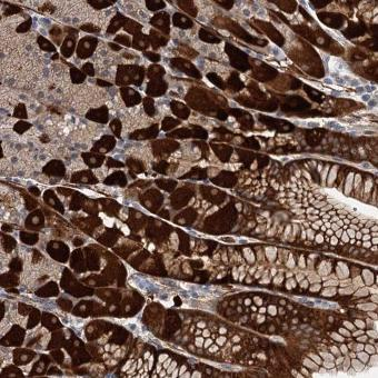 Immunohistochemistry (Formalin/PFA-fixed paraffin-embedded sections) - Anti-C11orf49 antibody (ab122616)