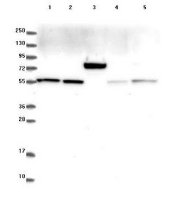 Western blot - Anti-GADL1  antibody (ab122637)