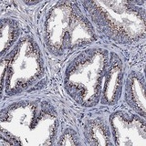 Immunohistochemistry (Formalin/PFA-fixed paraffin-embedded sections) - Anti-PLET1 antibody (ab122640)