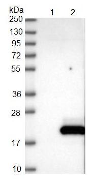 Western blot - Anti-CALML5 antibody (ab122665)