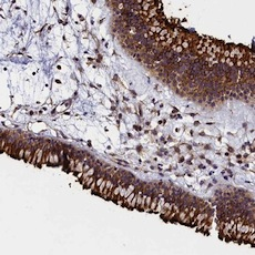 Immunohistochemistry (Formalin/PFA-fixed paraffin-embedded sections) - Anti-GRXCR1 antibody (ab122670)
