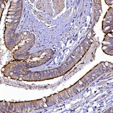 Immunohistochemistry (Formalin/PFA-fixed paraffin-embedded sections) - Anti-FAM154B antibody (ab122671)