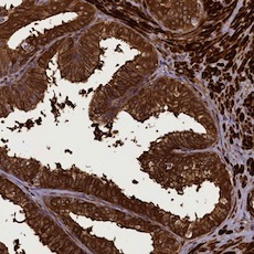 Immunohistochemistry (Formalin/PFA-fixed paraffin-embedded sections) - Anti-CCDC102A antibody (ab122681)