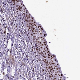Immunohistochemistry (Formalin/PFA-fixed paraffin-embedded sections) - Anti-SAMD10 antibody (ab122682)