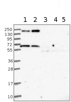 Western blot - Anti-TM7SF3 antibody (ab122691)