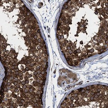 Immunohistochemistry (Formalin/PFA-fixed paraffin-embedded sections) - Anti-TRAPPC8 antibody (ab122692)
