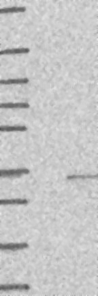 Western blot - Anti-C10orf107 antibody (ab122716)