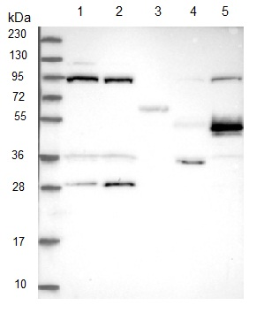 Western blot - Anti-TELO2 antibody (ab122722)