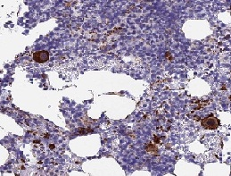 Immunohistochemistry (Formalin/PFA-fixed paraffin-embedded sections) - Anti-C15orf59 antibody (ab122729)