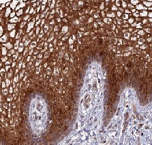 Immunohistochemistry (Formalin/PFA-fixed paraffin-embedded sections) - Anti-TSPAN16 antibody (ab122730)