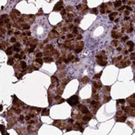 Immunohistochemistry (Formalin/PFA-fixed paraffin-embedded sections) - Anti-C15orf57 antibody (ab122735)