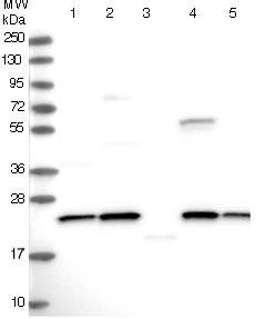 Western blot - Anti-NPVF antibody (ab122738)