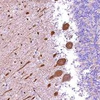 Immunohistochemistry (Formalin/PFA-fixed paraffin-embedded sections) - Anti-FUZ antibody (ab122778)