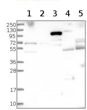 Western blot - Anti-CCDC114 antibody (ab122798)