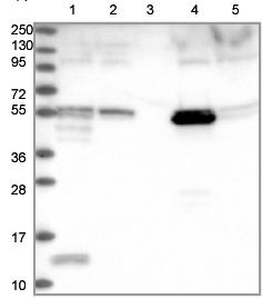 Western blot - Anti-PET112L antibody (ab122802)