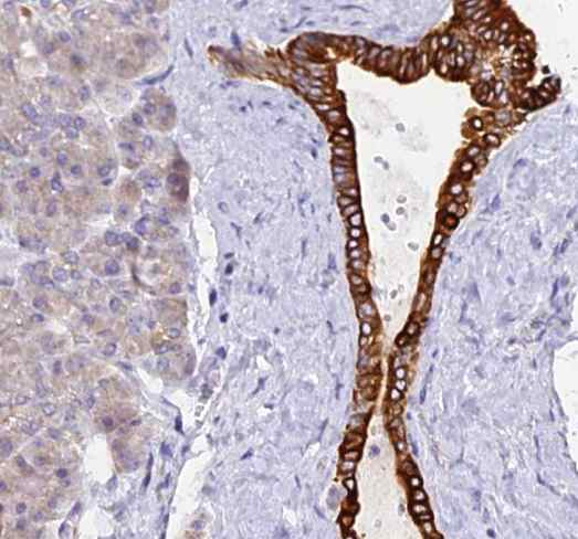 Immunohistochemistry (Formalin/PFA-fixed paraffin-embedded sections) - Anti-PKI-alpha antibody (ab122816)