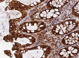 Immunohistochemistry (Formalin/PFA-fixed paraffin-embedded sections) - Anti-PODNL1 antibody (ab122818)
