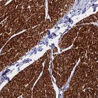 Immunohistochemistry (Formalin/PFA-fixed paraffin-embedded sections) - Anti-LOXHD1 antibody (ab122824)