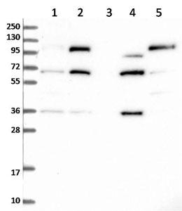 Western blot - Anti-FILIP1L antibody (ab122835)