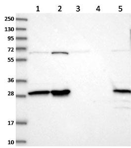 Western blot - Anti-INO80E antibody (ab122837)