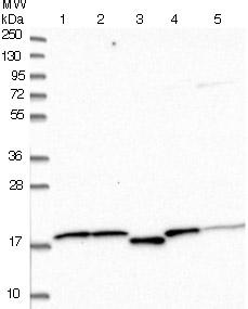 Western blot - Anti-SNTN antibody (ab122845)