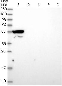 Western blot - Anti-ANKRD34B antibody (ab122846)