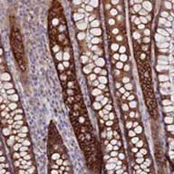Immunohistochemistry (Formalin/PFA-fixed paraffin-embedded sections) - Anti-TMEM44 antibody (ab122859)