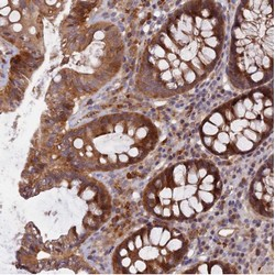 Immunohistochemistry (Formalin/PFA-fixed paraffin-embedded sections) - Anti-FAM151B antibody (ab122863)