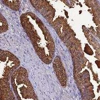 Immunohistochemistry (Formalin/PFA-fixed paraffin-embedded sections) - Anti-OR56B1 antibody (ab122881)