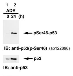 Western blot - Anti-p53 (phospho S46) antibody [36] (ab122898)