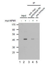 Immunoprecipitation - Anti-c-Myc antibody (ab122907)