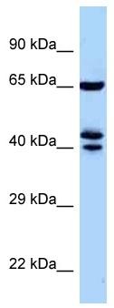 Western blot - Anti-ZNF583 antibody (ab122929)